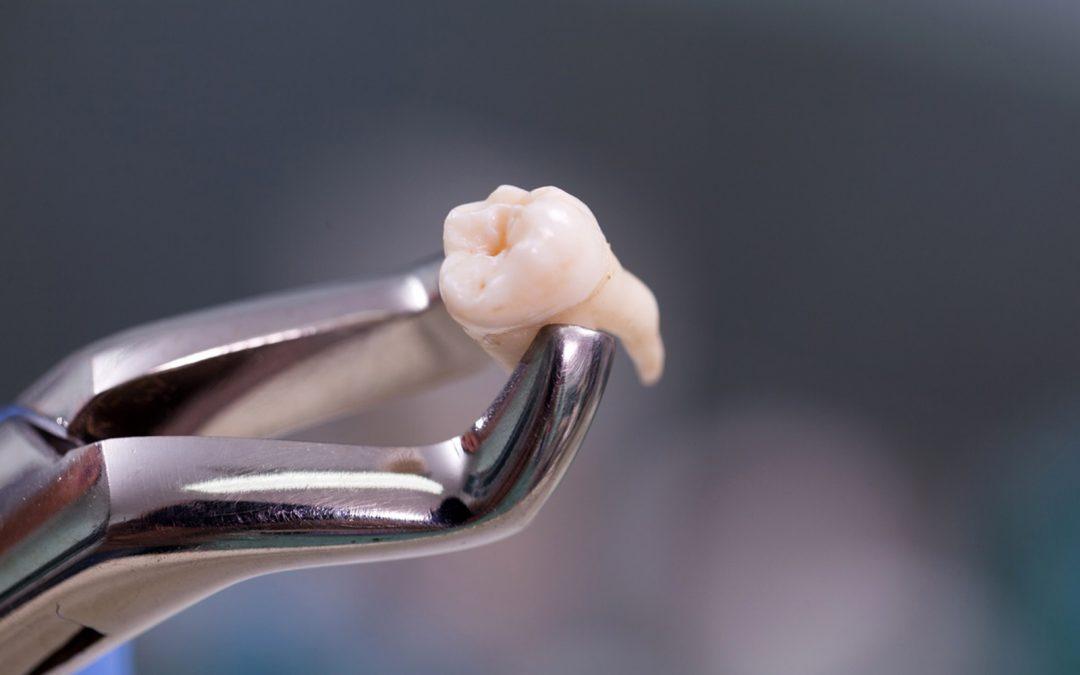 Bien se préparer à une intervention d'extraction de dents de sagesse…